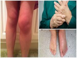 Гиалуроновая кислота для суставов: показания, противопоказания, исследования эффективностиминусы