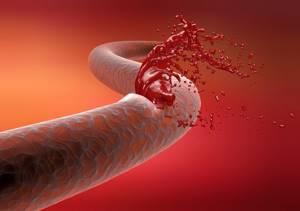 Гемофилия: симптомы, признаки, лечение у детей