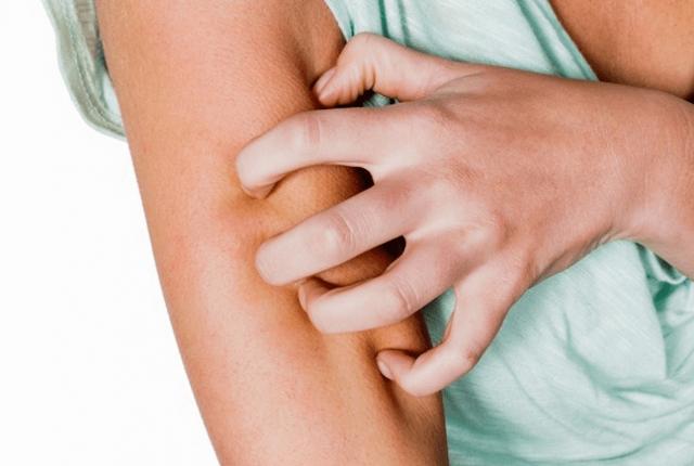 Чесотка: симптомы и лечение