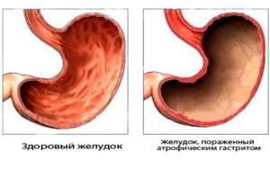 Гастрит с пониженной кислотностью желудка, симптомы, лечение