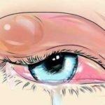 Ячмень на глазу: как лечить, как выглядит, причины частого появления, капли, мази, народные средства