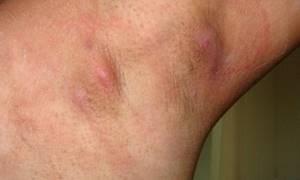Гидраденит: лечение, симптомы, причины, под мышкой, в паху, что можно делать, что нельзя