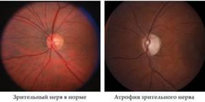 Атрофия зрительного нерва: лечение, симптомы, причины