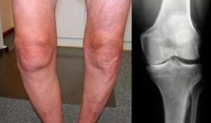Артрит коленного сустава: лечение, симптомы, причины