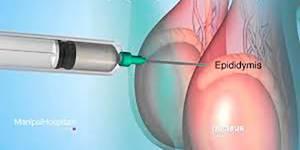 Диагностика бесплодия по анализу спермы станет легче