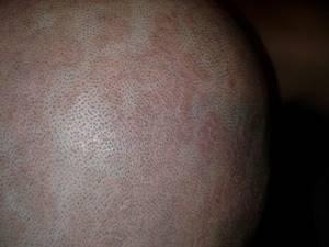 Атопический дерматит у взрослых, лечение, симптомы, причины
