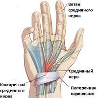 Туннельный синдром (запястного канала): лечение, симптомы, причины, прогноз