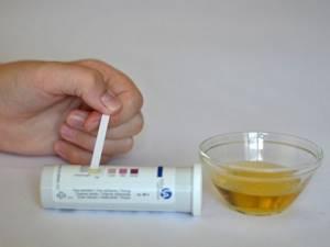 Ацетон в моче - причины ацетонурии