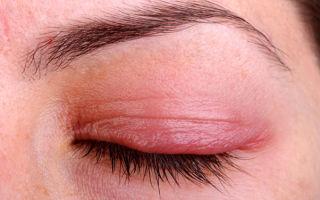 Блефарит: симптомы и лечение заболеваний век глаз