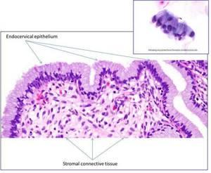 Эрозия шейки матки: причины развития, методы лечения, восстановление после прижигания