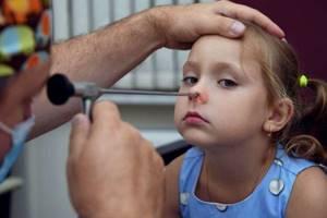 Аденоиды у детей: симптомы, причины, варианты лечения