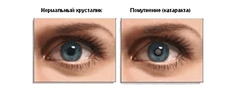 Катаракта: симптомы, лечение, причины