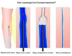 Сосудистые звездочки: на лице, на ногах, удаление, лечение, профилактика