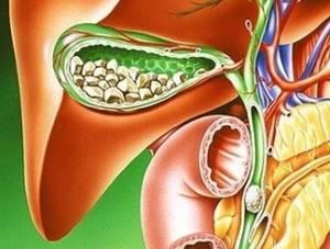 Заболевания желчного пузыря: симптомы, лечение, причины, диагностика