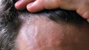 Шелушение кожи на лице, на теле, на руках, на голове
