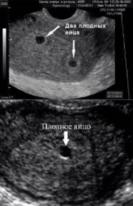 УЗИ при беременности по неделям на разных сроках