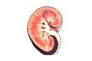 Амилоидоз почек: лечение, симптомы, диагностика, причины, прогноз