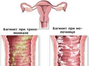 Выделения с запахом рыбы у женщин