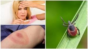 После укуса клеща может развиться аллергия на мясо