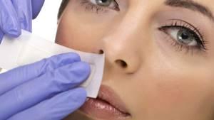 Рост волос на лице у женщин: причины, лечение, как избавиться от лишних волос