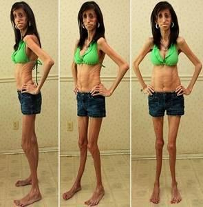 Анорексия: симптомы, лечение у женщин, детей, причины, последствия