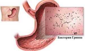 Желудочный (кишечный) грипп: симптомы и лечение