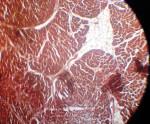 Кардиосклероз: симптомы, причины, лечение, профилактика