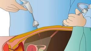 Колоноскопия провоцирует аппендицит