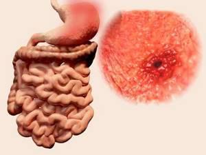 Язва желудка: симптомы, лечение, лекарства, диета, осложнения