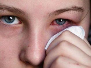 Аллергический конъюнктивит: лечение, симптомы