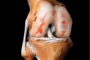Артроз коленного сустава симптомы, причина, степени