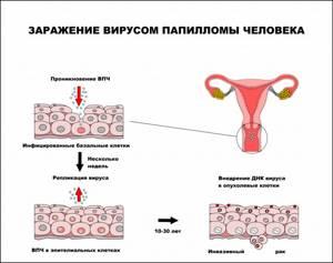 Вирус папилломы человека: у женщин, мужчин, симптомы. лечение
