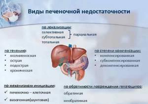 Печеночная недостаточность: симптомы, лечение, стадии, причины, прогноз