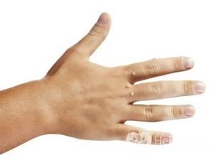 Бородавки на руках и пальцах - лечение, удаление, выведение