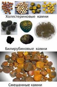 Камни в желчном пузыре: симптомы, лечение, причины