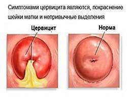 cимптомы и лечение острого и хронического цервицита шейки матки