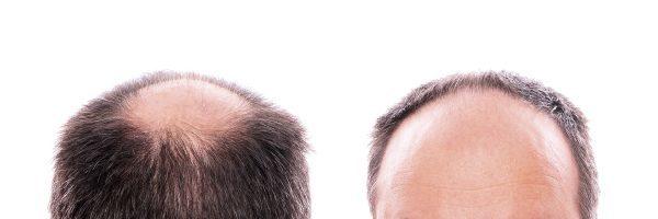 Андрогенная алопеция у женщин и мужчин: лечение, причины, признаки