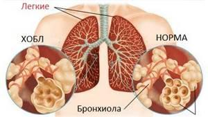 ХОБЛ: симптомы, лечение, препараты, стадии болезни, диагностика