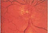 Неврит зрительного нерва: симптомы, лечение, причины, что делать, прогноз