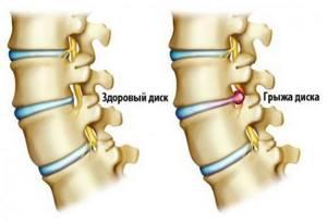 Боль в спине между лопатками - причины
