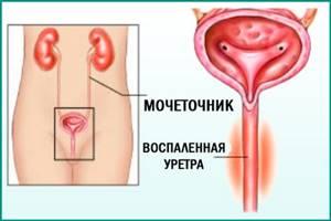 Нолицин при цистите - эффективное лекарство