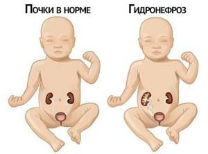 Гидронефроз почек у детей, взрослых, при беременности. Диагностика и лечение заболевания
