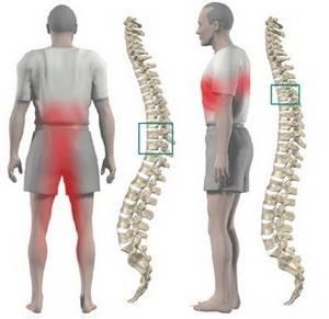Боль в пояснице отдает в ногу - лечение, причины